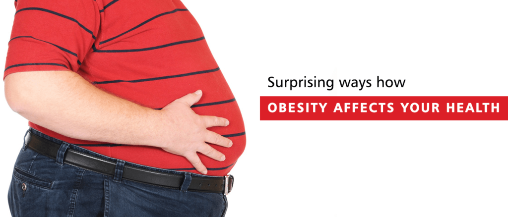 surprising ways how obesity affects your health