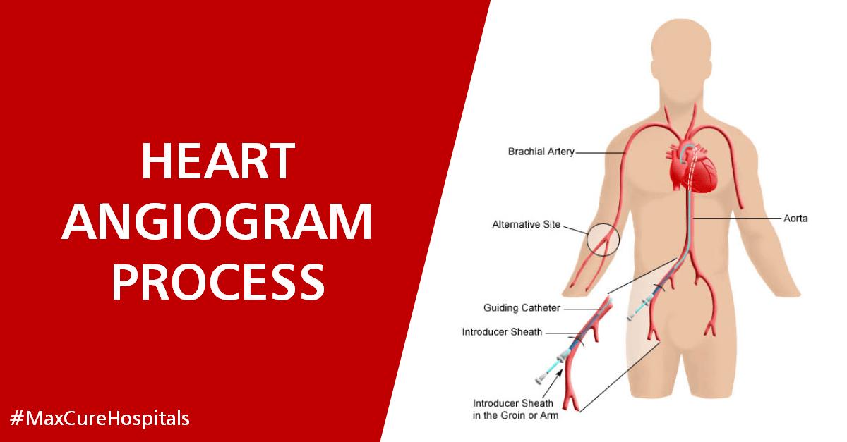 angiogram process
