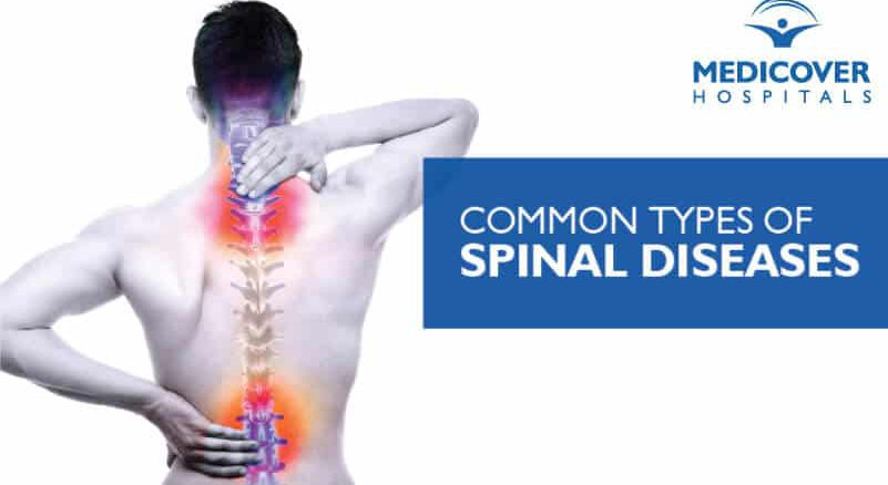 Common Types of Spinal Diseases