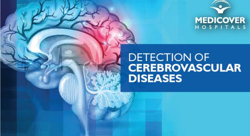 Detection Of Cerebrovascular Diseases