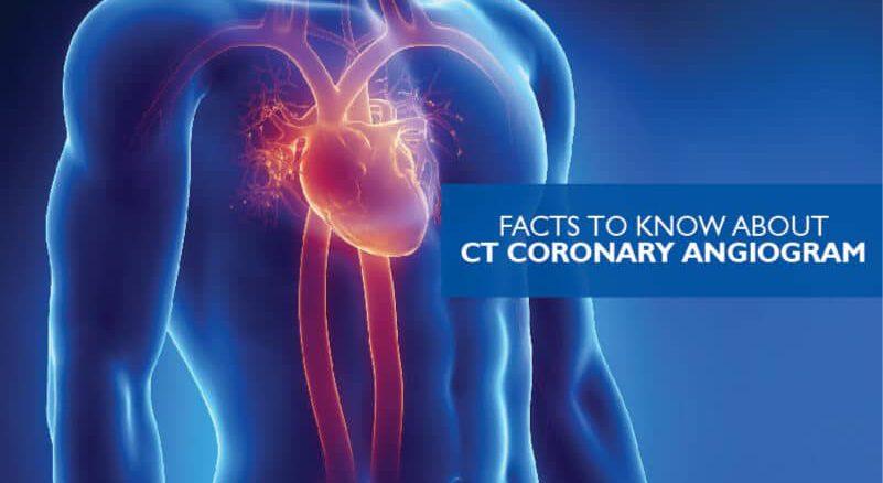 CT coronary angiogram