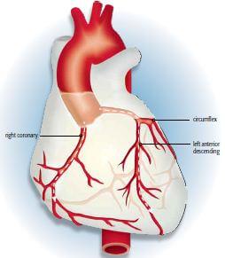 what is angiogram diagram