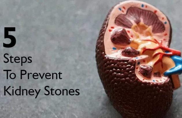 5 steps to prevent kidney stones