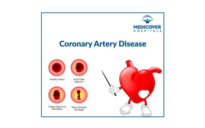 Coronary Artery Disease - Medicover
