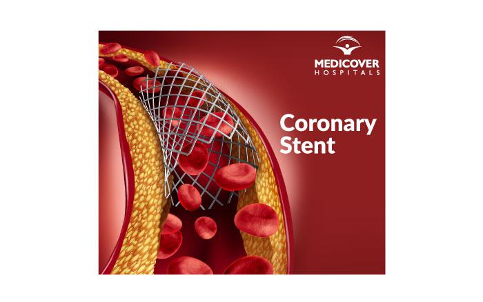 Coronary Stent - Medicover