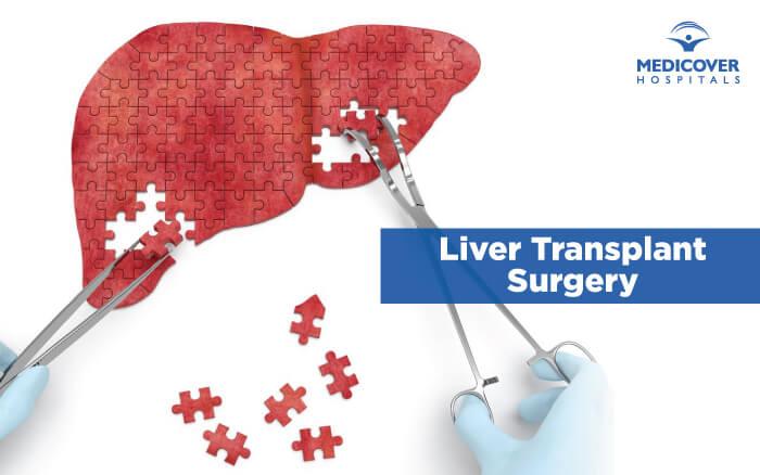 Liver-Transplant-Medicover