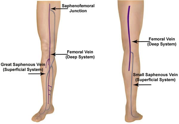 MaxCure Deep vein and Superficial Vein
