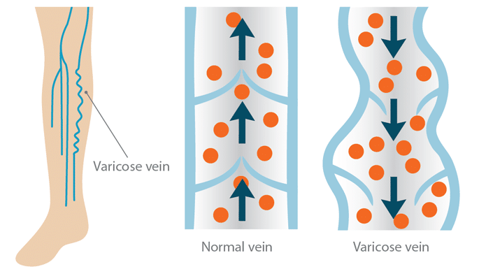 MaxCure varicose veins treatment