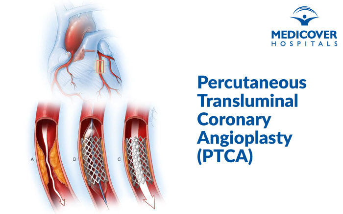 Percutaneous Transluminal Coronary Angioplasty (PTCA)