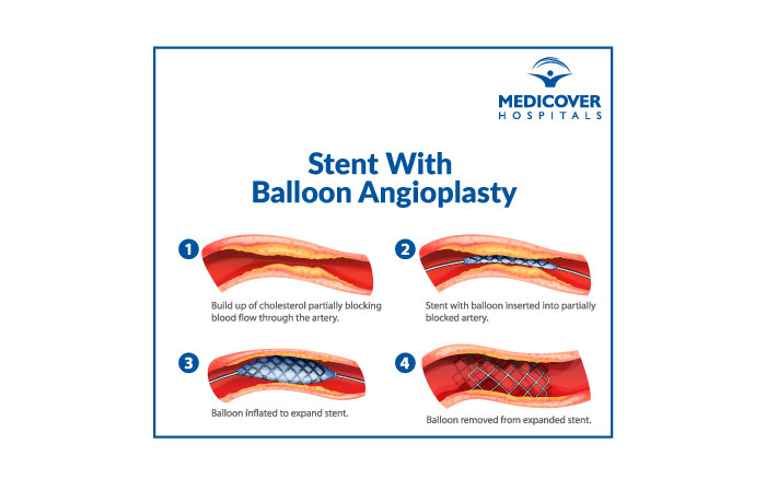 Stent With Balloon Angioplasty - Medicover