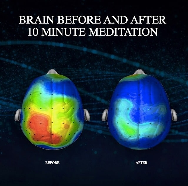 Meditation before and after brain