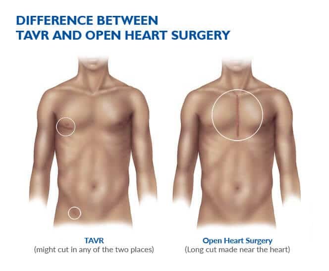 Difference between TAVR and Open heart surgery