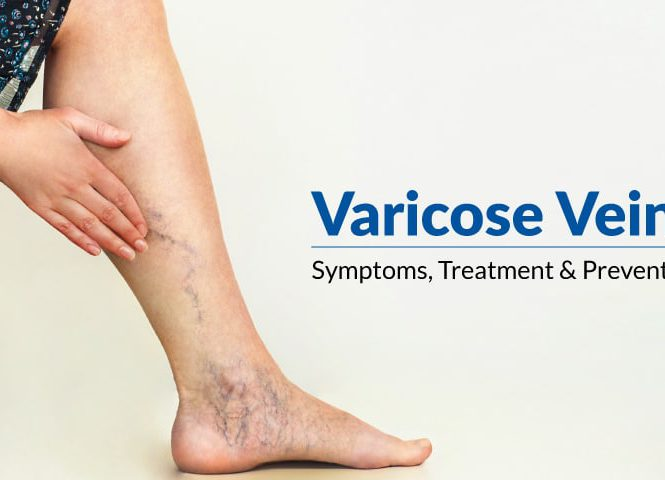 varicose veins symptoms treatment prevention