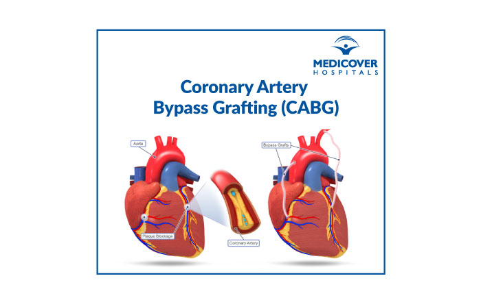 CABG-Coronary Artery Bypass