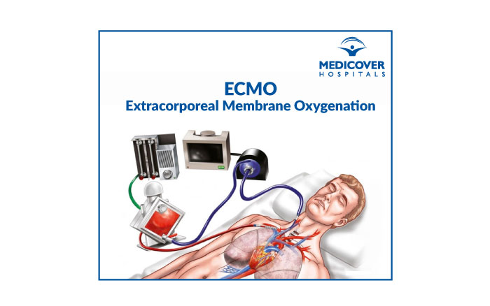 ECMO-Extracorporeal Membrane Oxygenation