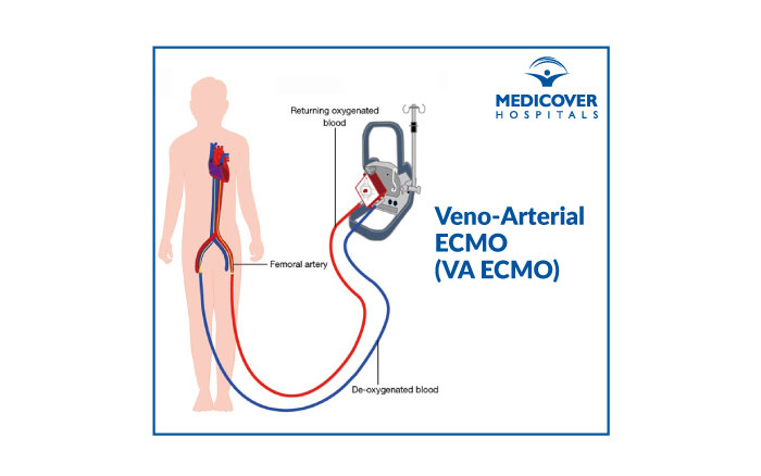 Veno-Arterial ECMO (VA ECMO) Medicover