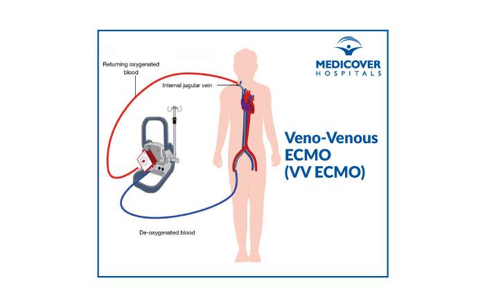 Veno-Venous-ECMO (VV ECMO) Medicover